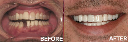 Full Mouth Reconstruction-Veneers Implants Porcelain Crowns