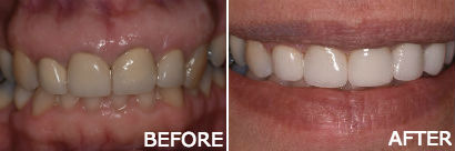 Full Porcelain Crowns with Bleaching