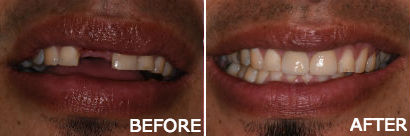 Implant with Porcelain Crowns