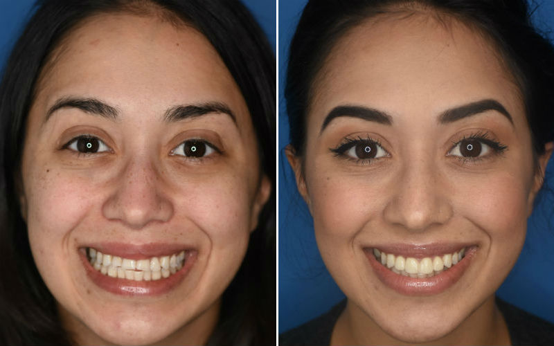 PORCELAIN CROWNS Full Face