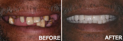 Upper-Lower Dentures
