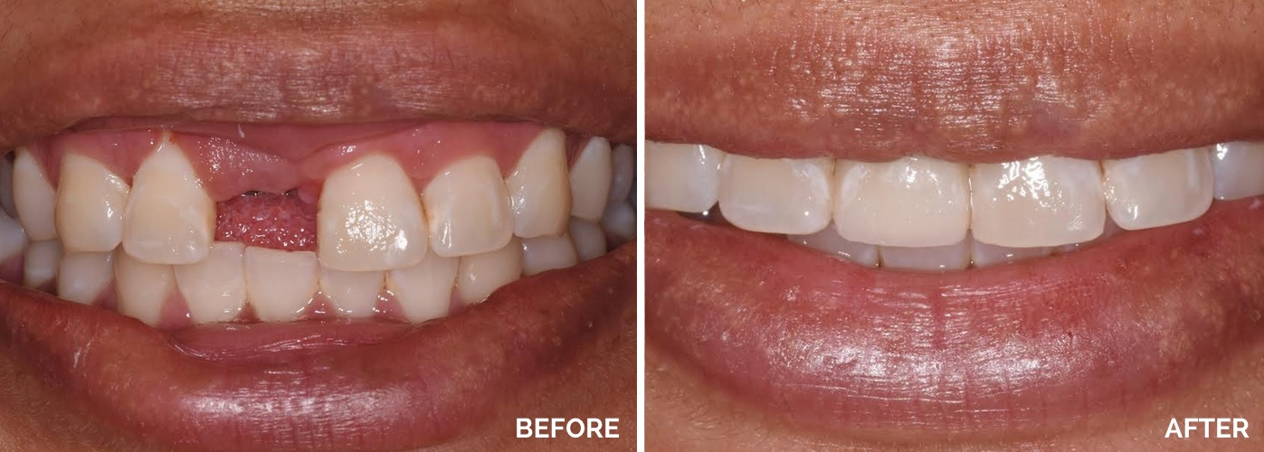 tooth implant before and after | Pleasantville NJ