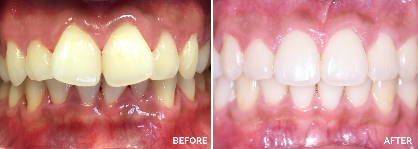 invisalign and bleaching | Atlantic City NJ