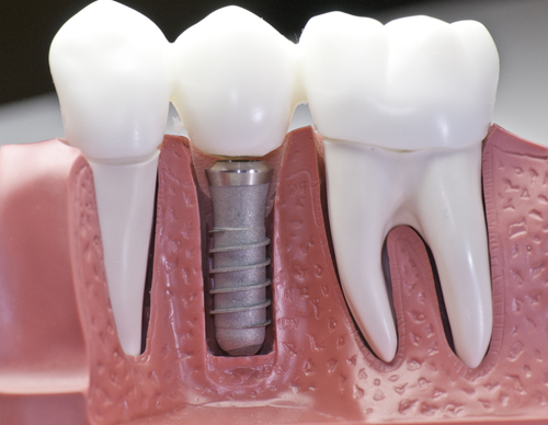 dental implant absecon nj