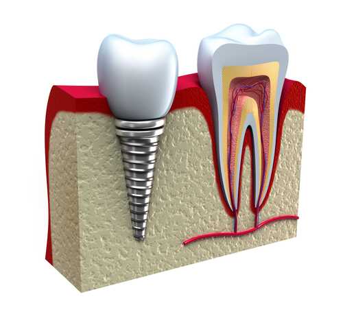 dental implant northfield nj