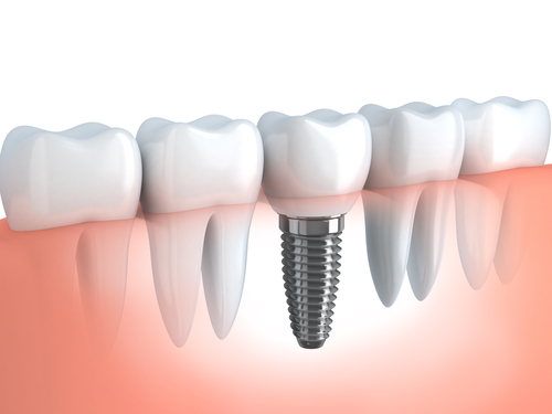 dental implants galloway, nj