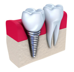 dental implants Brigantine, NJ