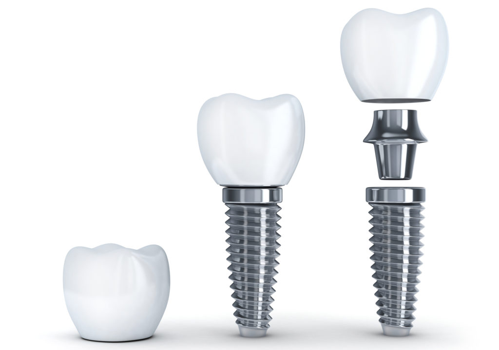 What is a Dental Implant? | Northfield, NJ