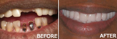 Dentures with Implants
