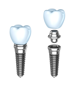 tooth implant pleasantville | egg harbor township, nj
