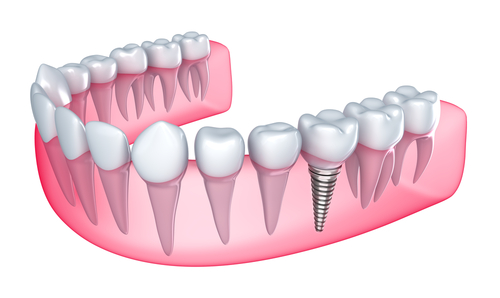 dental implant ventor nj