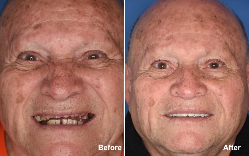 porcelain crowns before and after photos