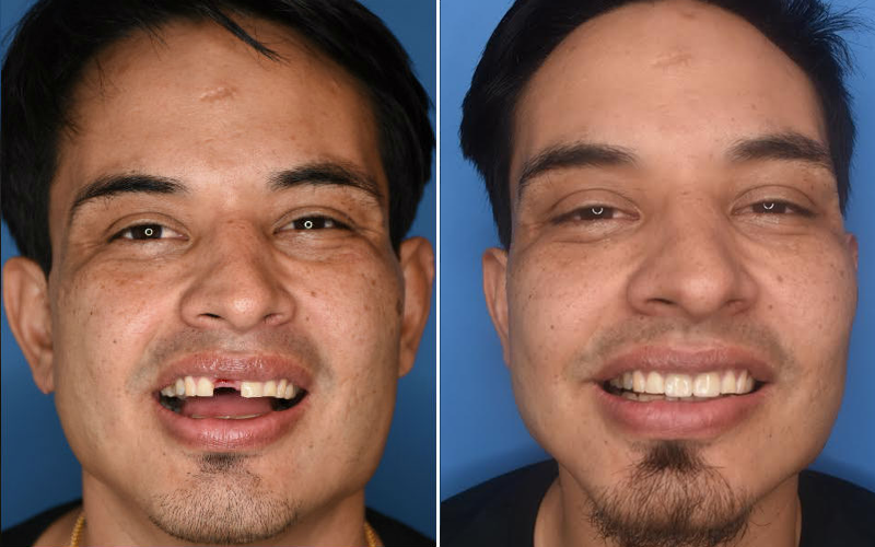 Implant with Porcelain Crowns Full Face